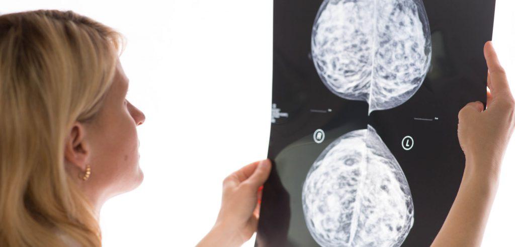 MRI השד