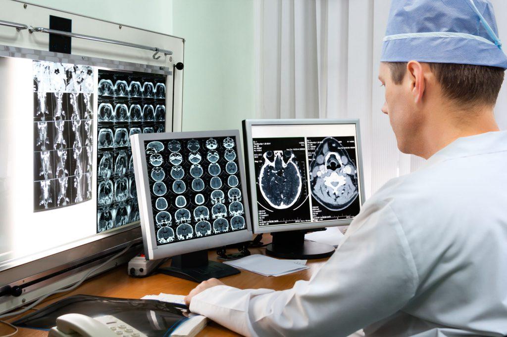 MRI מוח וראש